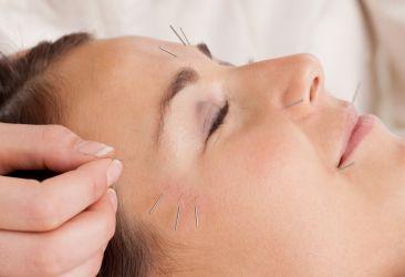 Cosmetische acupunctuur